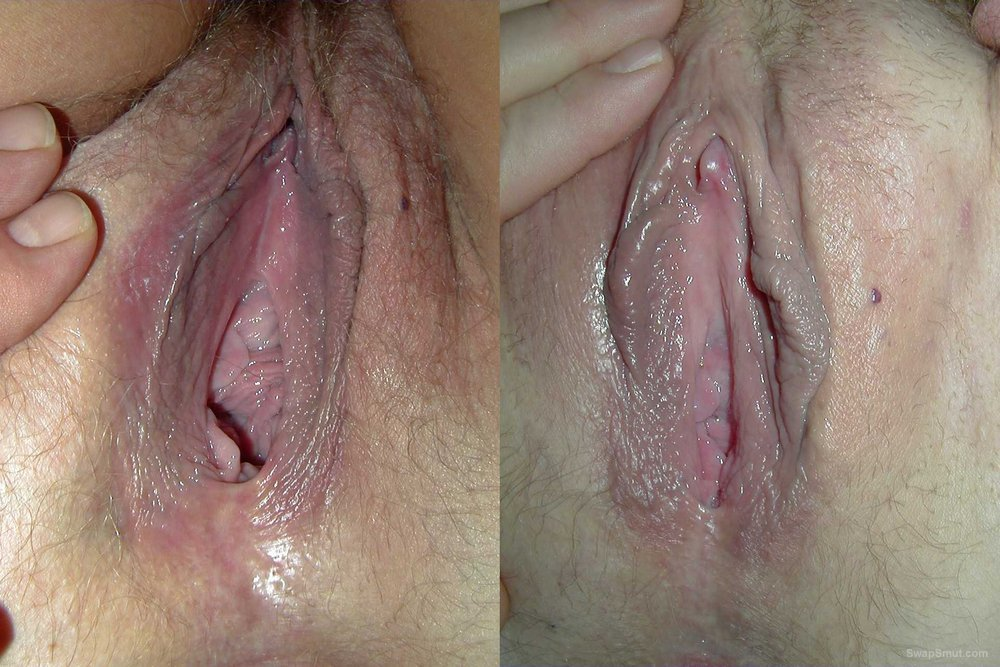 Anal sex after birth